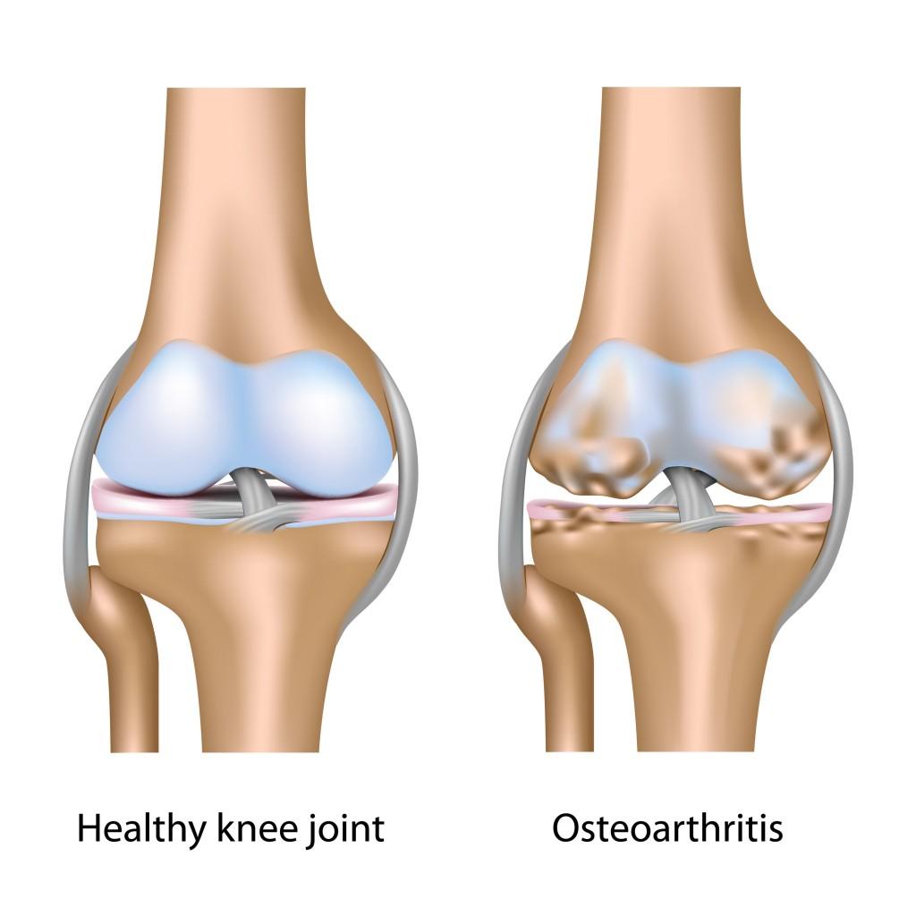 zentril osteoarthritis